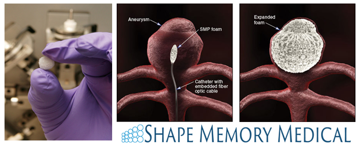 Model of SMP foam being used to block an aneurysm